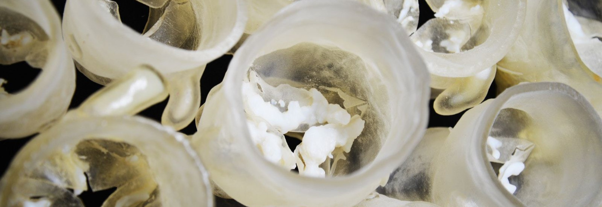 Multi-material physical models of patients' aortic heart valves, each with its own unique size, shape, and amount of calcification. Credit: Wyss Institute at Harvard University